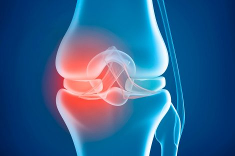 Knee problem, x-ray view